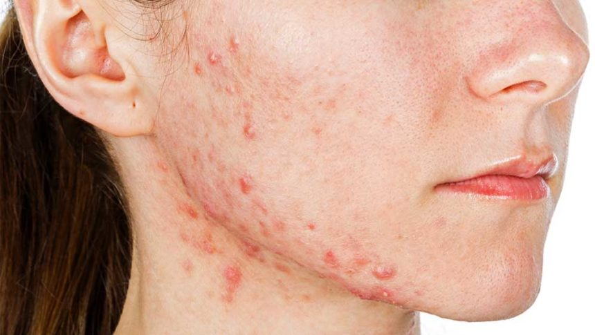 FDA Approves First Topical Minocycline Formulation for ...