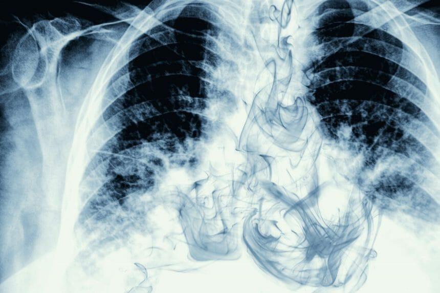 smoking, chest x ray