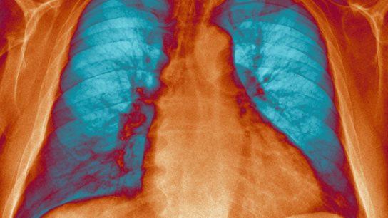 pulmonary hypertension x ray
