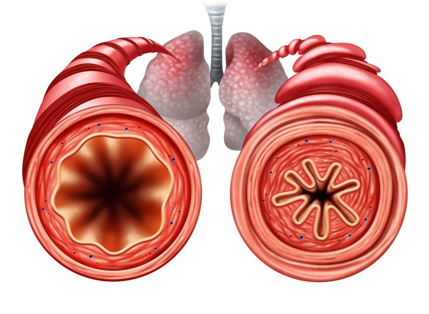 Healthy brinchial tube and constricted bronchial tube with asthma