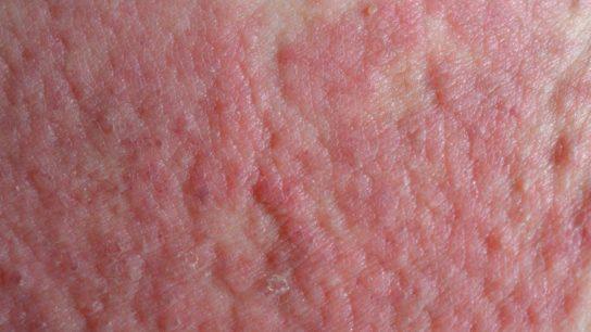 Atopic dermatitis skin texture