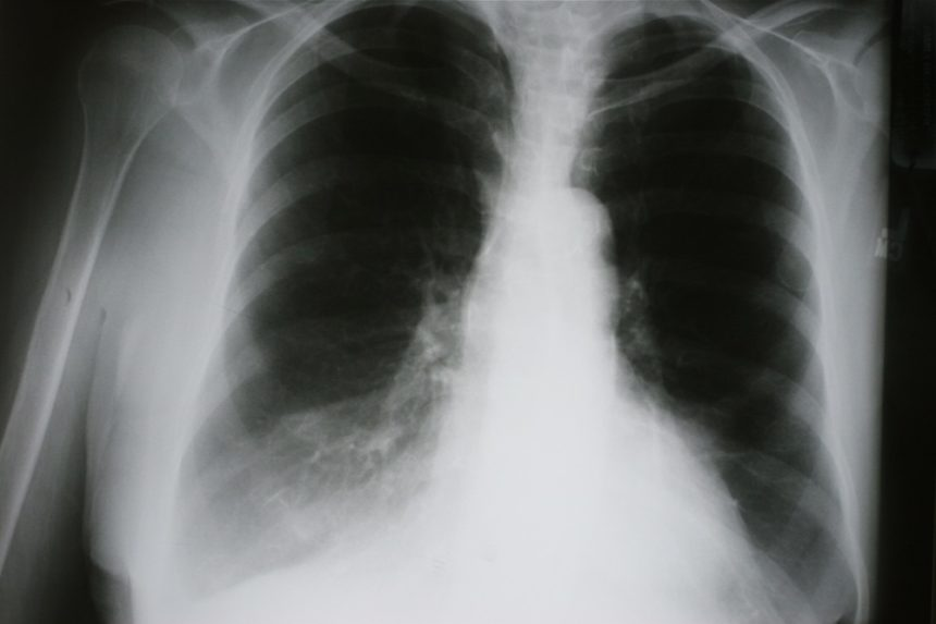 COPD, lung x ray