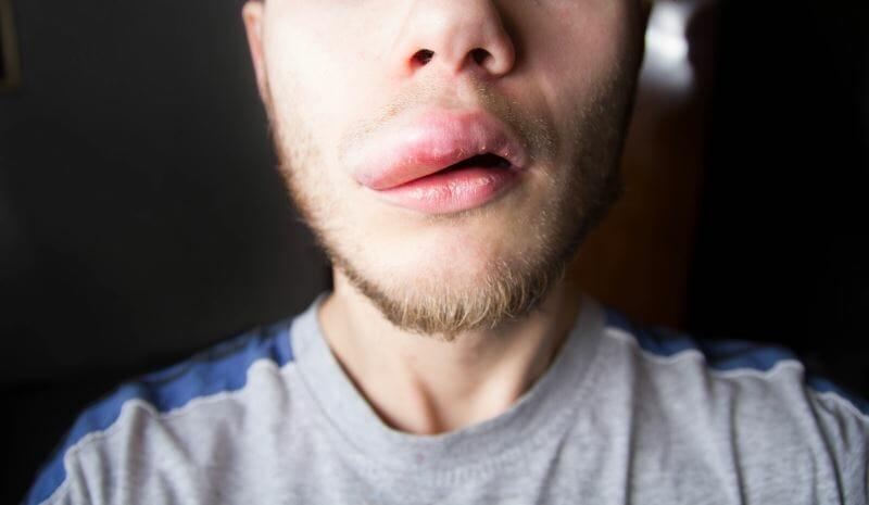 Angioedema on a man's upper lip
