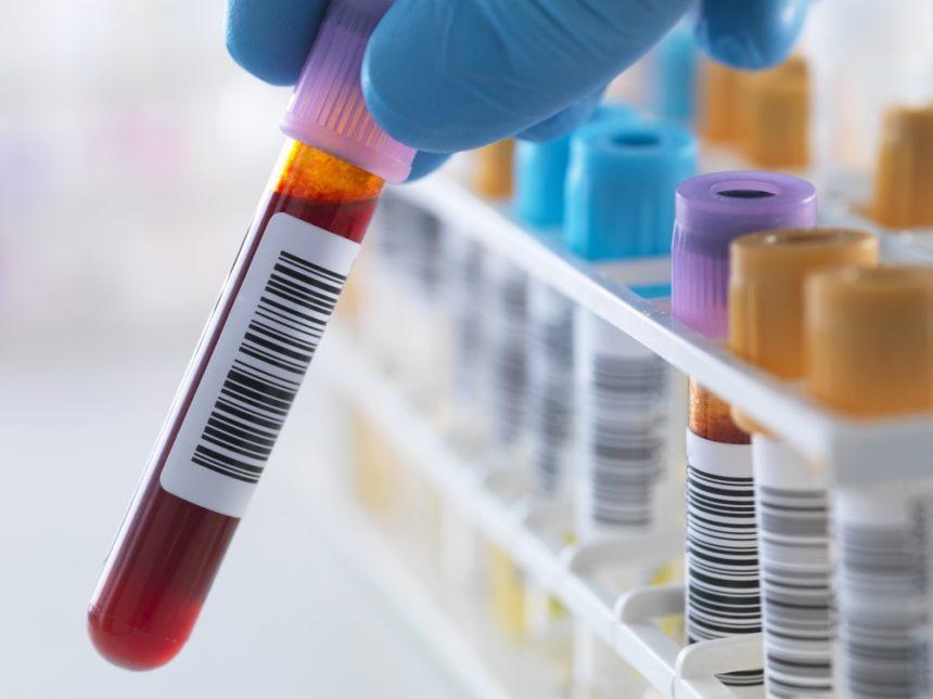 Vial for blood test